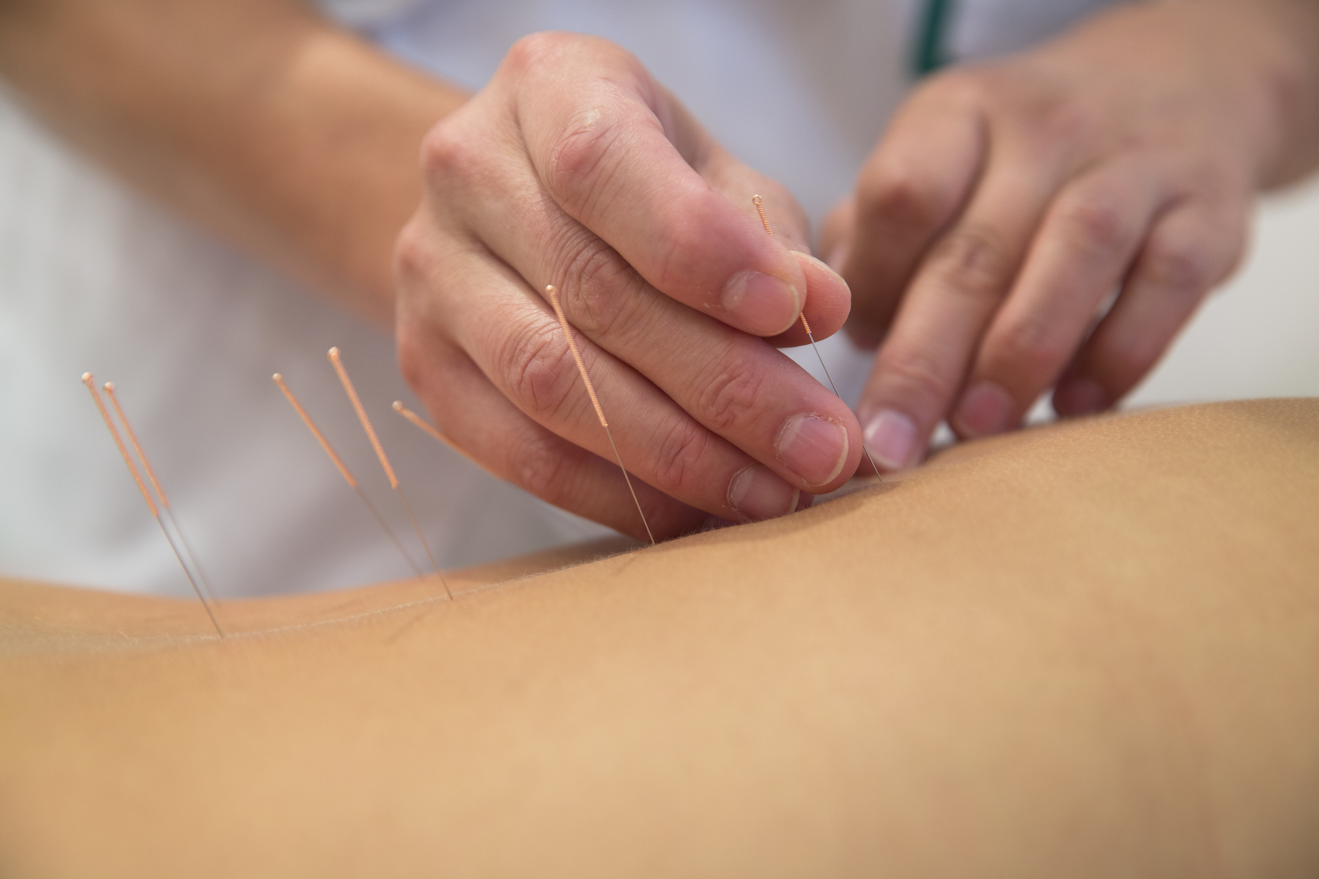 Acupuncture Therapies in Horley/Crawley, Surrey.