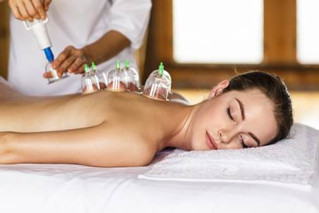 Image of woman receiving myofascial dry cupping treatment