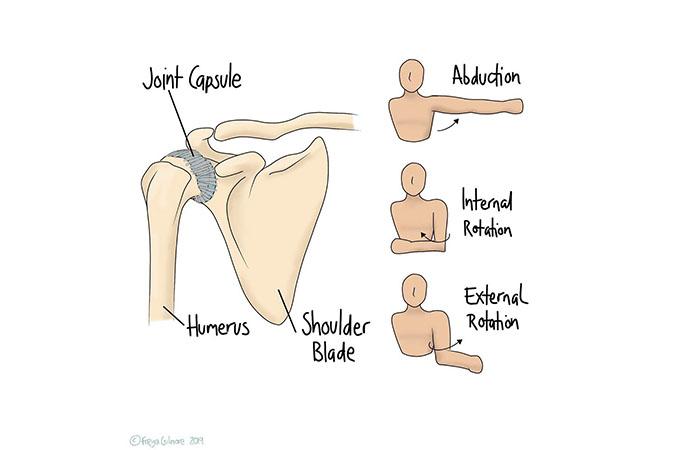Symptoms, causes and management of frozen shoulder
