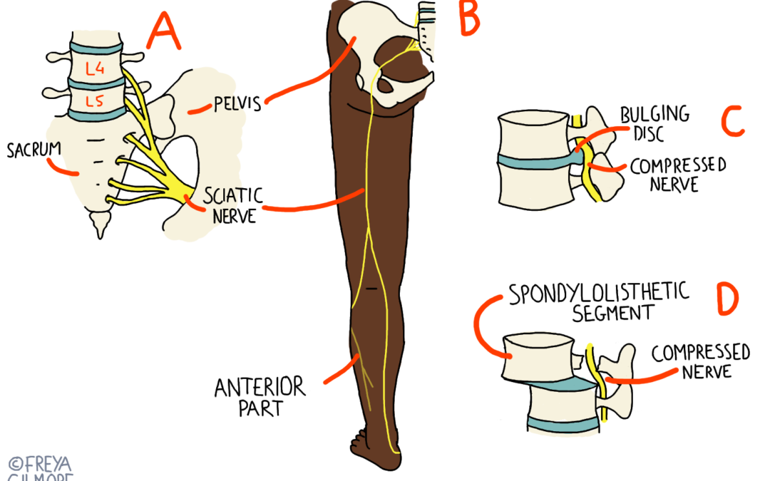 Sciatica and Osteopathy