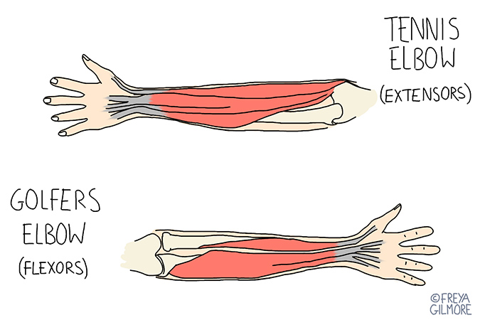 Golfer's & tennis elbow: prevention, diagnosis and management