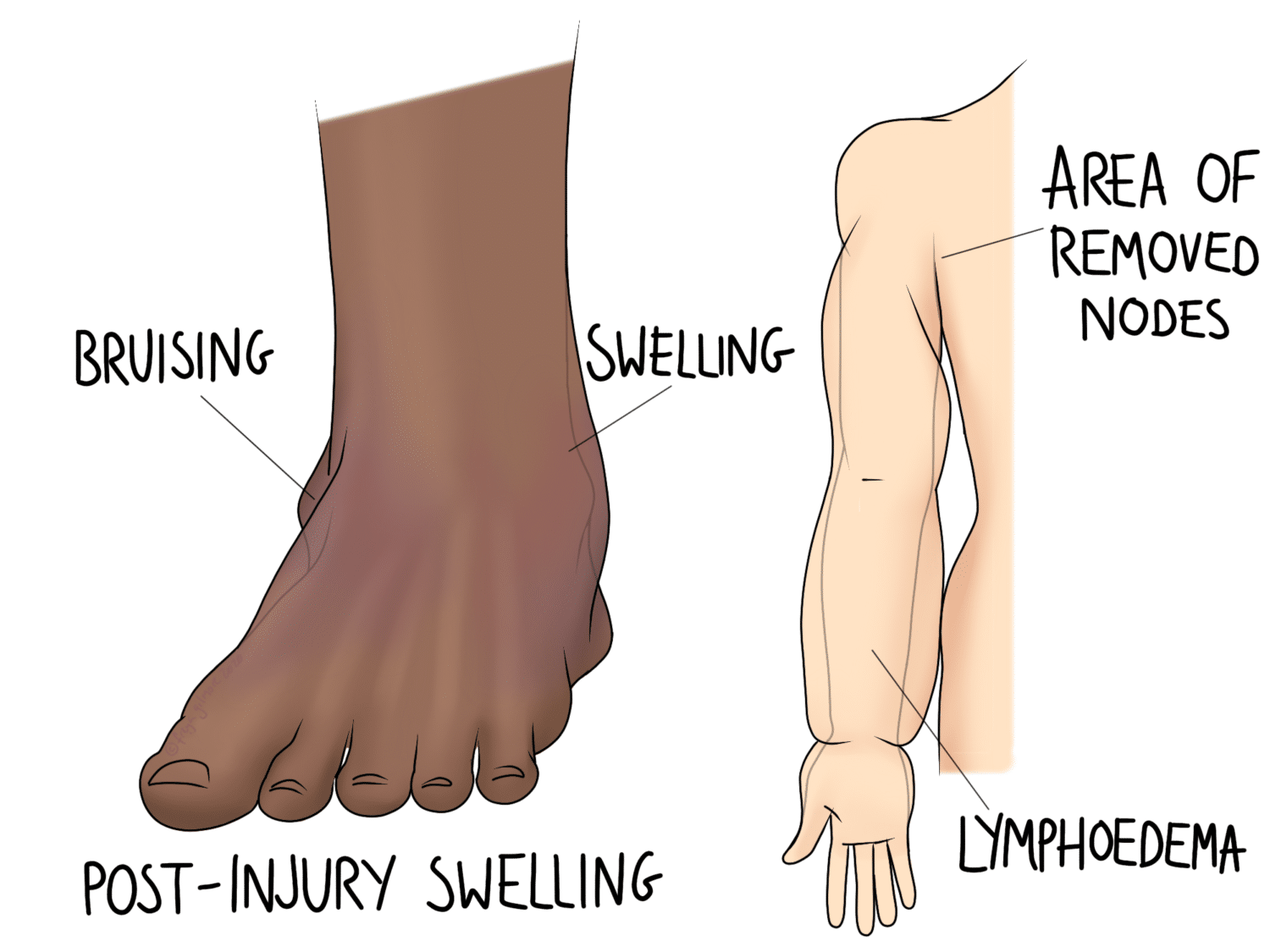 Circulatory problems - lymphoedema and post-injury swelling