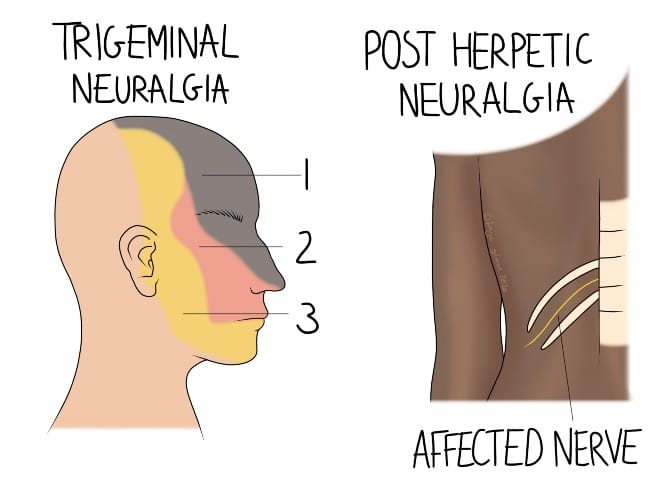 How osteopathy can help with symptoms of neuralgia